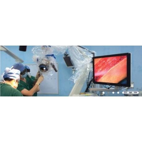 Intraoperative 3D Imaging System - KestrelView II